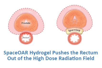 SpaceOAR Hydrogel Pushes the Rectum Out of the High Dose Radiation Field